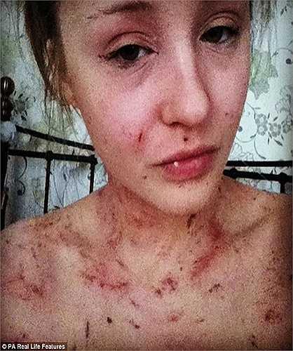 Amy-Louise James, 25 tuổi, mắc chứng bệnh chàm nghiêm trọng ngay từ khi còn nhỏ. Căn bệnh khiến cô phải thay ga giường mỗi ngày do vết bong tróc trên cơ thể liên tục rơi xuống.