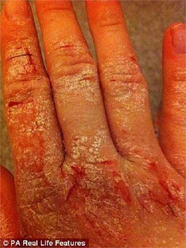 Theo y khoa, chàm là một loại bệnh ngoài da khá phổ biến trên thế giới, nó chiếm đến ¼ trên tổng số các bệnh ngoài da và gây ảnh hưởng không nhỏ đến sức khỏe, chất lượng cuộc sống và vẻ đẹp thẩm mỹ của những bệnh nhân mắc bệnh.
