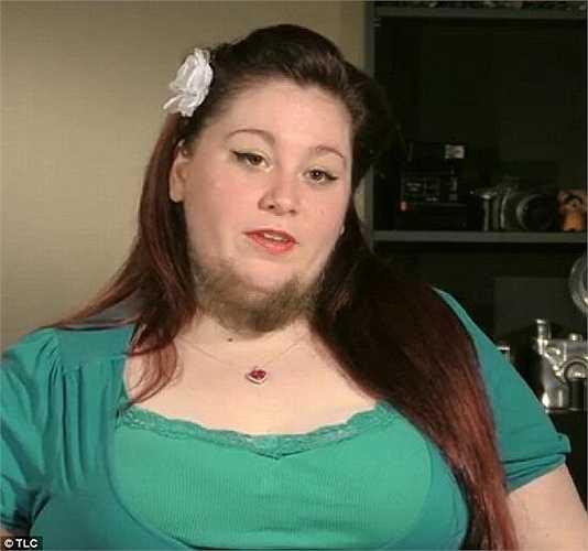 Annalisa Hackleman, nhiếp ảnh gia người Mỹ đã mọc râu trên mặt khi lên tuổi 13 do mắc hội chứng đa nang buồng trứng. Nguyên nhân do sự mất cân bằng nội tiết tố khiến người cô mọc lông trên mặt và cơ thể.