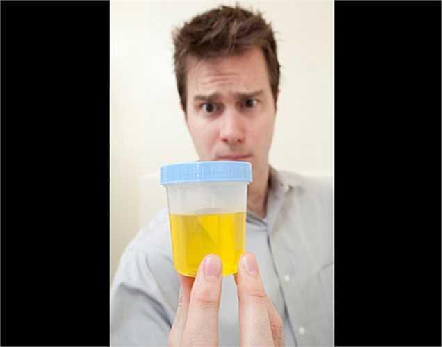 Không phải nước tiểu màu vàng là dấu hiệu của mất nước: Nước tiểu màu vàng không phải là khi nào cũng là một dấu hiệu của sự mất nước. Vì Một số thuốc cũng thay đổi màu nước tiểu.