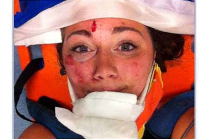Vỡ cằm, chấn thương mang tai, chấn thương cơ hàm ... cùng một số chấn thương khác trên mặt không thể ngăn cản người phụ nữ này tự sướng