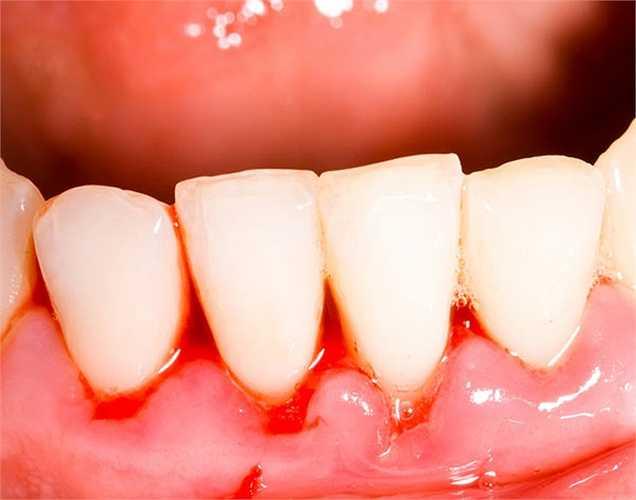 Chăm sóc răng miệng: Xoài xanh rất tốt cho nướu răng, ngăn ngừa chảy máu nướu răng, mùi hôi và sâu răng.
