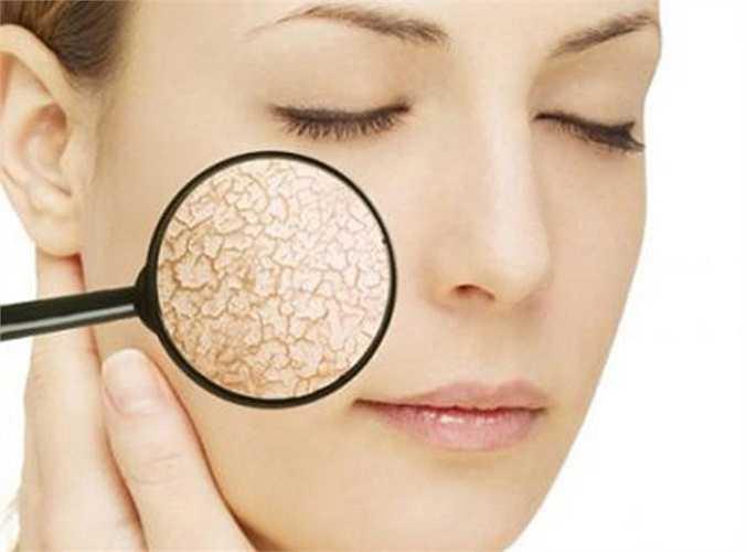 1.Tàn phá làn da: Các chuyên gia phẫu thuật thẩm mỹ và các phương pháp trị liệu da chỉ cho chúng ta biết: Thiếu ngủ khiến cơ thể không sản sinh ra hormon sinh trưởng mà lần lượt tạo ra cortisol, một loại hormon căng thẳng được tìm thấy, có thể phá vỡ nhiều collagen trong cơ thể.