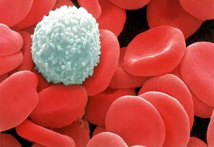 11. Ung thư: Khi giấc ngủ kém làm tăng các gốc tự do trong cơ thể, do đó làm tăng nguy cơ phát triển ung thư, đặc biệt là ung thư ruột kết.