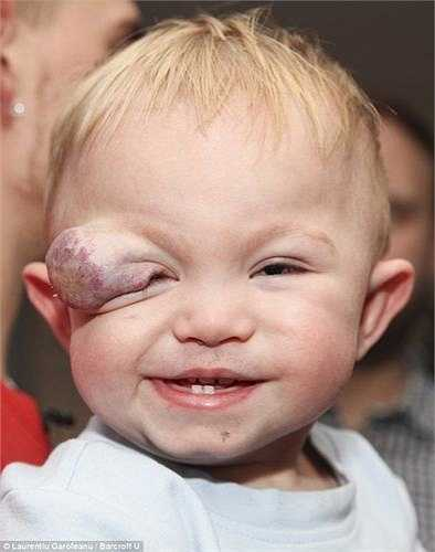 Tuy nhiên, càng lớn vết bớt này phát triển càng nhanh và trở thành một khối u lành tính ngay vùng mắt phải khiến khả năng nhìn của bé Colby rất khó khăn.