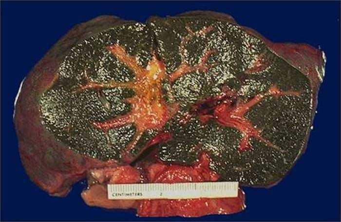 Xơ gan: Rượu là độc chất của tế bào gan. Những người nghiện rượu lâu năm sẽ bị xơ gan, mô của gan biến thành sẹo và mất chức năng.