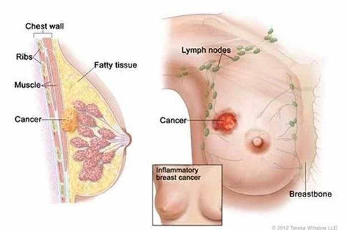 Nguy cơ ung thư vú ở những phụ nữ uống 2 ly rượu/ngày cao hơn 51% những phụ nữ không bao giờ uống rượu.