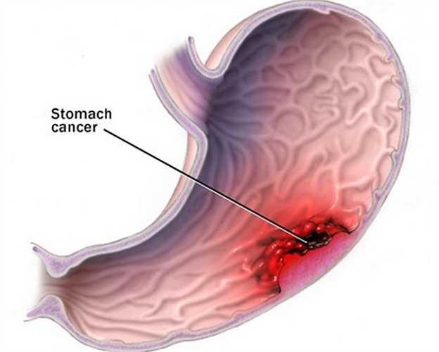 Viêm dạ dày cấp và loét dạ dày là kết quả thườngthấy đối với người uống rượu thường xuyên. Một người sử dụng trung bình từ 4 ly rượu trở lên/ngày có nguy cơ mắc ung thư dạ dày cao hơn 65% so với những người không uống hoặc uống rất ít.