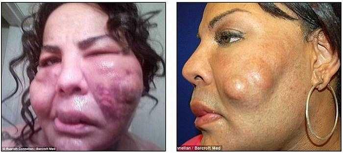 Tuy nhiên, sau ca phẫu thuật, khuôn mặt Rajee đã bị biến dạng má, cằm và sưng phồng môi sau khi phẫu thuật thẩm mỹ.