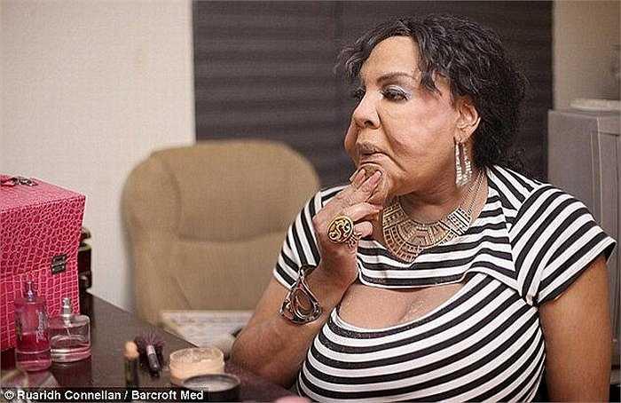 Gương mặt cô đã bị phá hủy do bị bơm bơm hợp chất trộn xi măng cùng keo dính lốp xe vào mặt.