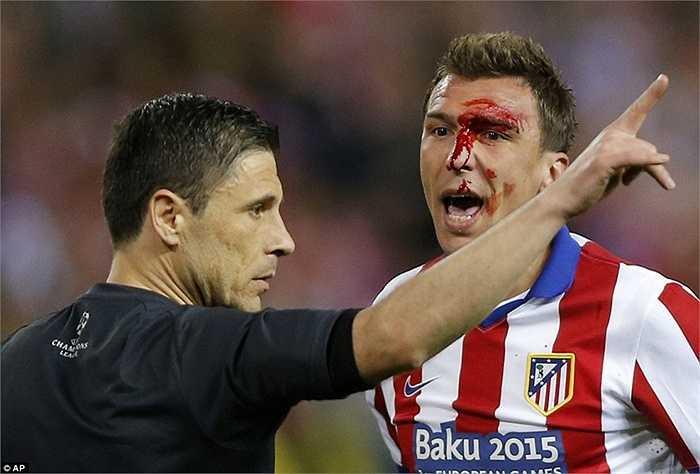 Trong khi đó, Mandzukic lại nổi đình đám khi nổi xung với khuôn mặt bê bết máu