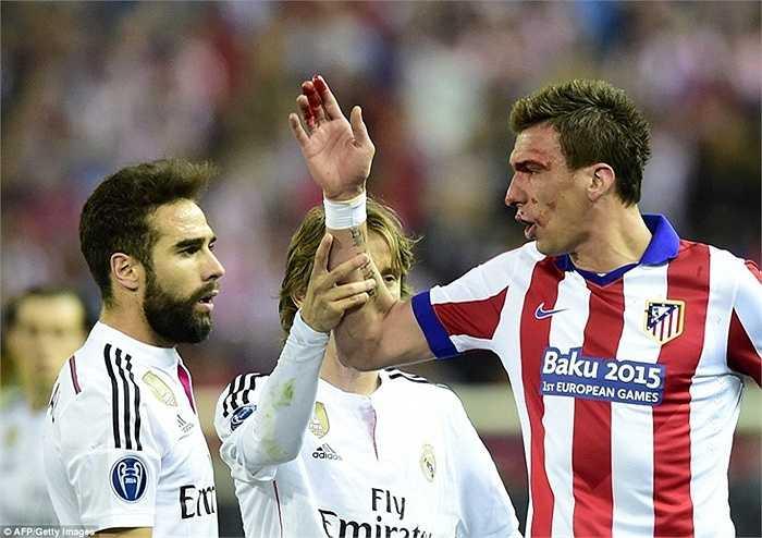 Tiền đạo người Croatia tố Sergio Ramos và Carvajal thay phiên nhau chơi xấu anh. Tuy nhiên trọng tài chính Mark Clattenburg lại không nghĩ vậy