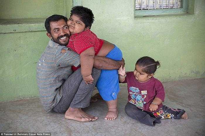 Thu nhập của anh Rameshbhai khoảng 50 USD một tháng nhưng tiền ăn cho ba đứa con lên tới 163 USD, nên anh thường xuyên phải vay mượn. Thậm chí, anh dự định bán thận để có tiền mua thức ăn cho các con.