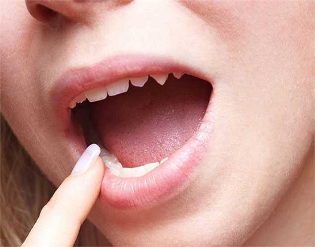 Đau và sưng răng: Dùng bột nghệ trộn với dầu đinh hương, cho hỗn hợp này vào chỗ  răng đau và sưng, giúp giảm đau và viêm.