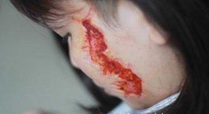 Tại Việt Nam, một cô gái quê ở Vinh, Nghệ An cũng tự tìm đến trung tâm thẩm mỹ để xóa hình xăm trên mặt và ngực.