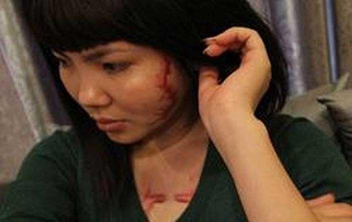 Kết quả là vết xăm đã biến mất, nhưng thay vào đó là 3 hố lõm trên khuôn mặt và vòng ngực.