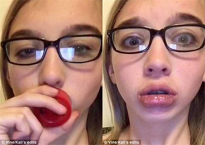 Những người thực hiện sử dụng một dụng cụ đặc biệt để làm cho đôi môi của mình phình to, 'gợi cảm' hơn