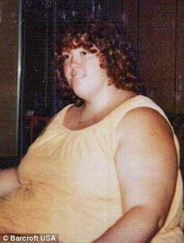 Với món sở trường là kem và bánh ngọt, năm 8 tuổi, Gayla đã nặng 85 kg. Con số này tiếp tục tăng không thể kiểm soát. Thậm chí, những nỗ lực kiêng đồ ngọt càng khiến cô ăn nhiều hơn.
