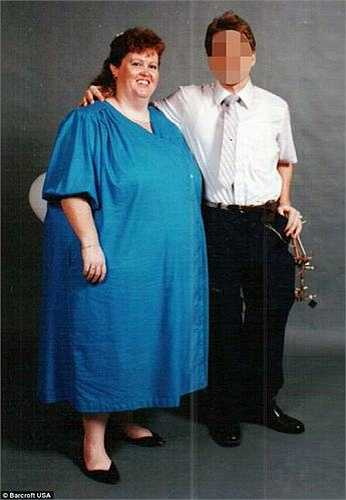 Các bác sỹ cho rằng, căn bệnh béo phì của Gayla là do di truyền bởi các thành viên trong gia đình Gayla đều có thân hình nặng nề và vòng 2 khổng lồ.