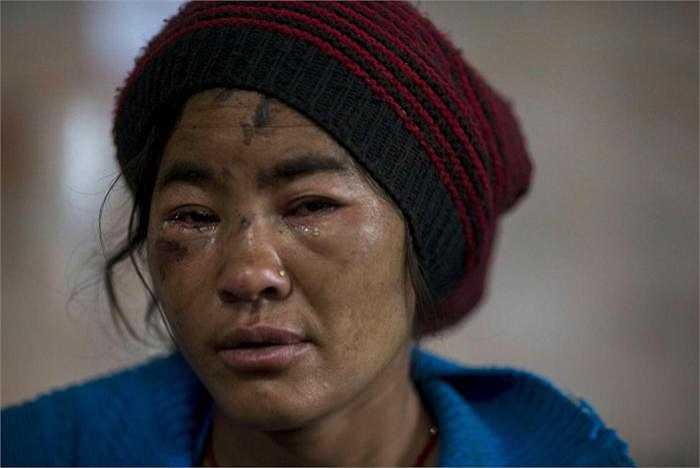 Sarita (35 tuổi), khóc vì những cơn đau gây ra do chấn thương từ trận động đất tại bệnh viện Gorkha trong Gorkha, Nepal.