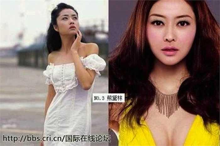 Người mẫu Hùng Đại Lâm cũng từng có vòng 1 lép kẹp, dễ nhận thấy trong những bức ảnh cũ.