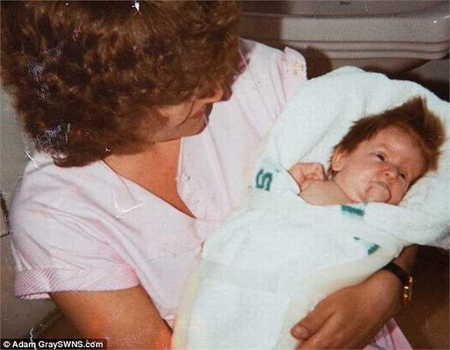 Khi mới được sinh ra, Rebecca được chẩn đoán mắc bệnh 'giòn xương' hay  còn gọi là bệnh 'xương thủy tinh'. Nghĩa là chỉ vài tác động nhỏ dù chỉ là cái hắt hơi cũng có thể khiến xương Rebecca bị gẫy.