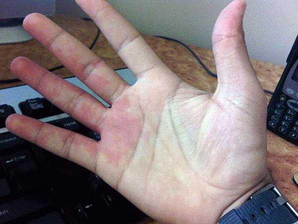 Lòng bàn tay đỏ: Trong y học gọi hiện tượng lòng bàn tay luôn luôn có màu đỏ sẫm là lòng bàn tay đỏ. Đây là dấu hiệu của bệnh gan, cụ thể hơn là chứng gan nhiễm mỡ hoặc xơ gan. Tuy nhiên, trong thời kỳ mang thai, lòng bàn tay đỏ là hiện tương vô cùng bình thường bởi sự gia tăng lưu lượng máu đến bàn tay.