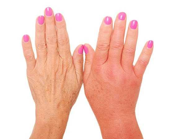 Bàn tay bị sưng: Khi bàn tay trở nên cứng và sưng thì có thể là dấu hiệu của bệnh suy giáp. Khi tuyến giáp hoạt động mất cân bằng sẽ gây giảm sự trao đổi chất và kết quả là chứng tăng cân, cơ thể giữ nước và sưng phù.