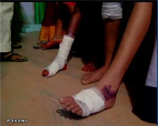Nhiều người dân cũng bị thương và các bệnh viện tại vùng tâm chấn đang bị đặt trong tình trạng quá tải