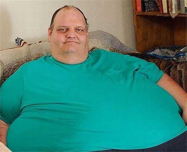 Patrick Deuel - 485 kg. Ông Deuel, 53 tuổi, hiện đang sinh sống tại bang Nebraska, Mỹ. Ông từng có cân nặng lên tới 485 kg và phải thực hiện nhiều biện pháp giảm cân cũng như phẫu thuật để giảm đi được khoảng 200 kg trong vòng chưa đầy 1 năm