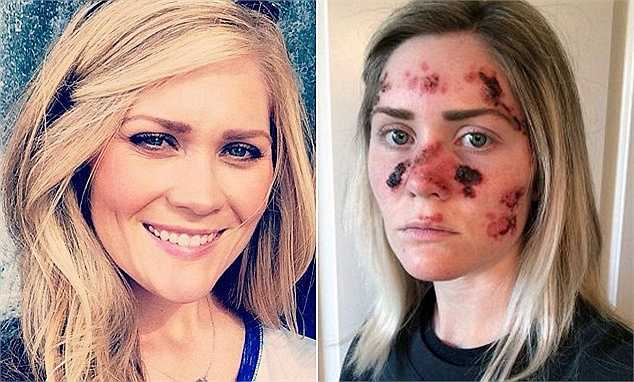 Một bà mẹ trẻ mắc ung thư da gần đây đã chia sẻ bức ảnh mà chị đang trong giai đoạn điều trị căn bệnh. Bức ảnh này như là một lời cảnh báo để mọi người biết thêm về hậu quả đáng sợ của căn bệnh.