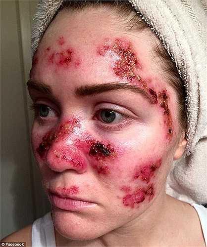 Bức ảnh cho thấy gương mặt của Tawny chi chít những vết sẹo kèm theo máu và mủ trong thời gian điều trị căn bệnh ung thư da. Bức ảnh đã nhận được hơn 50.000 lần chia sẻ trên facebook chỉ trong thời gian ngắn.