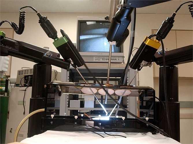 Bác sĩ phẫu thuật: Bác sĩ phẫu thuật đã sử dụng hệ thống tự động để hỗ trợ những ca mổ và việc phẫu thuật bằng robot sẽ gặp ít biến chứng hơn, bệnh nhân ít đau và ít mất máu hơn cũng như phục hồi nhanh và không để lại rõ sẹo mổ.