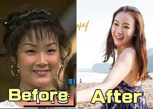 Hình ảnh cách đây 19 năm của Choi Ji Woo quá khác biệt so với hiện nay. Đôi mắt của cô bé và gương mặt tròn trịa, mũi thấp tẹt. Cũng từ đó, nhiều người đưa ra luận điểm Choi Ji Woo phẫu thuật thẩm mỹ. Cô là nữ diễn viên rất được yêu thích ở xứ sở kim chi. Người đẹp sinh năm 1975 là đại diện cho vẻ đẹp thánh thiện của làng giải trí Hàn Quốc trong nhiều năm qua. Tuy nhiên gần đây, nhan sắc của nữ diễn viên tài năng có dấu hiệu xuống dốc.