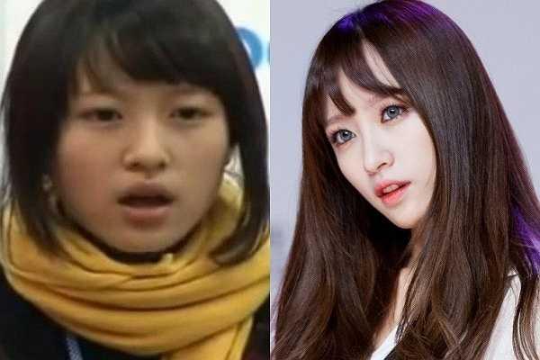 Là gương mặt đang được chú ý, quá khứ của Hani (EXID) luôn khiến cả cộng đồng Kpop quan tâm. Mới đây, đoạn clip Hani thi tuyển vào JYP bị lật lại và nhan sắc thời điểm 16 tuổi của cô trở thành đề tài bình luận sôi nổi. Một vài cư dân mạng nhận xét vẻ ngoài Hani quá đỗi tầm thường và đặt ra nghi vấn 'dao kéo; đối với nữ thần tượng.