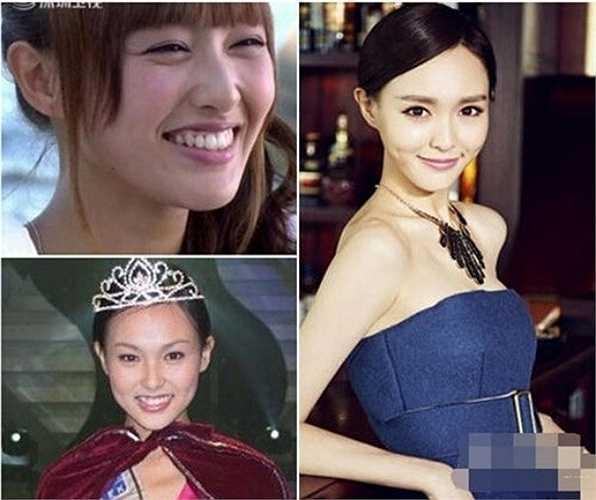 Hiện nay, cô đẹp hơn và ngày càng nổi tiếng. Chính vì sự khác biệt này, Đường Yên bị nghi vấn đã thẩm mỹ chỉnh răng và mắt.