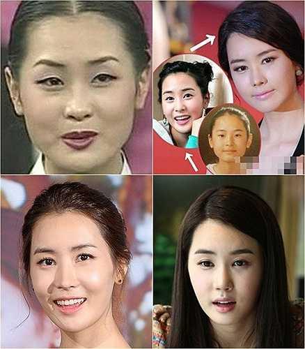 Hơn 10 năm trước, khi tham gia cuộc thi Hoa hậu Hàn Quốc, Lee Da Hae có ngoại hình hơi mập với đôi mắt một mí và cằm bạnh. 4 năm sau, xuất hiện trên màn ảnh với vai trò nữ diễn viên chính phim My Girl đình đám, cô sở hữu đôi mắt hai mí to tròn, khuôn mặt gọn gàng và thân hình thon thả. Những năm gần đây, cô lại tái xuất với hình ảnh xinh đẹp hơn nữa khi sở hữu khuôn mặt V-line hoàn hảo.