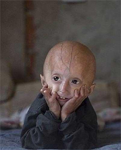Đây là dấu hiệu của bệnh Progeria (hay còn được gọi là lão hóa sớm) do rối loạn di truyền hiếm gặp khiến cho con người bị già đi nhanh gấp 8 lần bình thường.