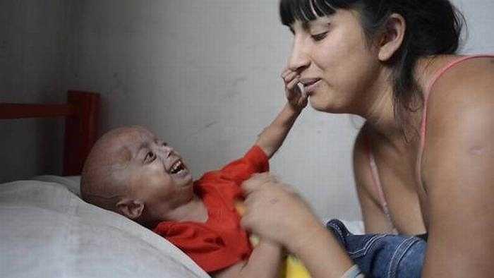 Một đứa trẻ bị Progeria khi lên 10 tuổi sẽ trông giống như cụ già với các triệu chứng: hói đầu, viêm khớp, các vấn đề về tim mạch... nhưng tâm trí thì vẫn như một đứa trẻ 10 tuổi bình thường.