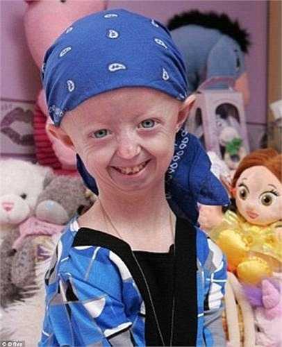 Một trường hợp khác là bé Hayley Okines ở Bexhill (nước Anh), em vừa qua đời tháng 4 vừa qua khi mới 17 tuổi. Cách đây 3 năm, Hayley được nhiều người biết đến sau khi xuất hiện trong một bộ phim tài liệu nói về căn bệnh lão hoá sớm.