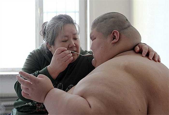 Người anh trong cặp song sinh bị bại não và béo phì, nặng 250kg và không thể di chuyển