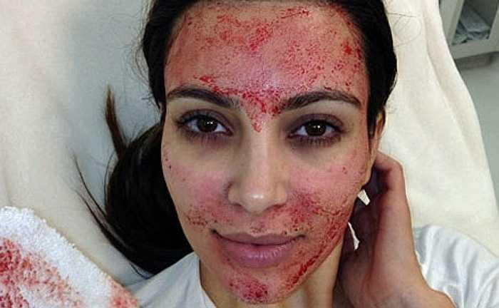 2. Dưỡng da bằng máu là hình thức người ta lấy máu của bạn và sau đó sử dụng công nghệ plasma, tách lấy tiểu cầu để đắp lên mặt, giúp xóa nếp nhăn và làm trẻ hóa làn da. Hình thức dưỡng da kiểu 'ma cà rồng' này được phát triển ở Mỹ từ năm 2011.