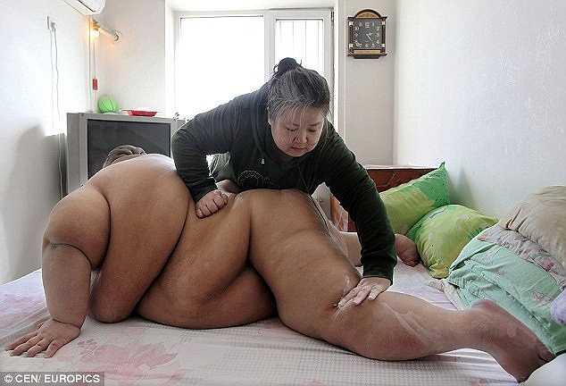 Bà Ma xoa thuốc vào những nếp gấp trên cơ thể con trai lớn để tránh nhiễm trùng.