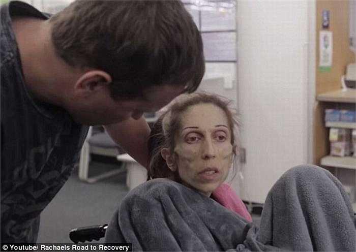 Hiện tại bệnh của Rachael Farrokh càng nguy kịch, sức khỏe giảm rõ rệt, hơi thở cũng yếu đi, và không thể đi ra khỏi nhà. Các bệnh viện địa phương đã từ chối tiếp tục điều trị cho cô vì không còn hy vọng .