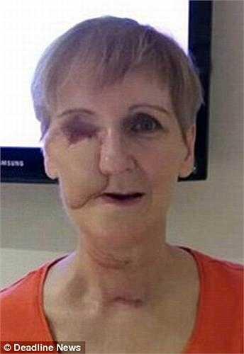 Các bác sỹ thông báo Helen bị ung thư xoang hàm trên và buộc phải tiến hành phẫu thuật xương gò má và vòm miệng bằng xương từ xương bả vai của Helen.