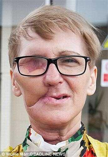 Lúc này, mắt của Helen đã bị khối ung thư tàn phá nên các bác sỹ phải tiến hành đồng thời ca phẫu thuật loại bỏ mắt phải trong vòng 22 giờ đồng hồ tại Bệnh viện đa khoa Nam Glasgow.