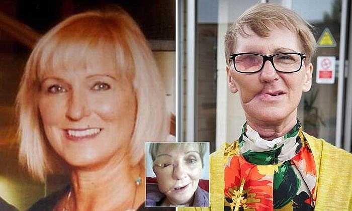 Helen đã mạnh dạn đăng tải các bức ảnh về căn bệnh ung thư đã hủy hoại khuôn mặt của mình để cảnh báo mọi người và phát động gây quỹ. Đến nay,cô đã gây quỹ được hơn £8.000 cho Greater Glasgow và các bệnh nhân cũng mắc bệnh ung thư như cô.