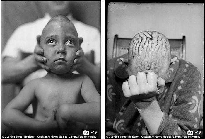 Đây chính là nơi đã diễn ra những ca phẫu thuật não đầu tiên từ năm 1900-1930 của bác sỹ Harvey Cushing, người được xem là cha đẻ của ngành phẫu thuật não.