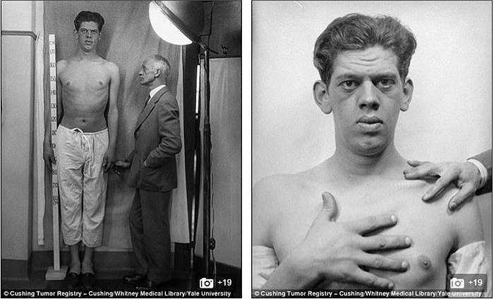 Các bệnh nhân được chụp kiểu đầu tiên với tư thế tay phải để trên ngực vì bác sĩ Harvey cho rằng bàn tay có thể xác định được bệnh tình trong người bệnh nhân.