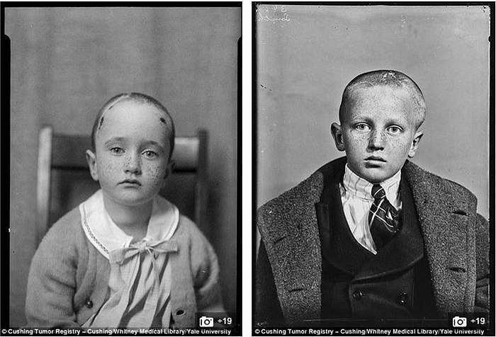 Sau đó, họ được chụp cận cảnh vào những vết mổ trên đầu, các khối u sưng phồng vì phẫu thuật, với khuôn mặt bệnh tật và đau đớn.